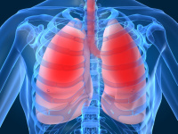 pneumonia is one of the most common infections leading to sepsis